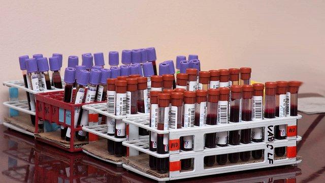 Daugavpilī sarūk asins donoru aktivitāte; ziedotās asinis vajag arī Covid-19 slimniekiem