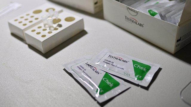 Darbinieku Covid-19 testēšanai var izmantot ātros antigēna testus vai paštestus